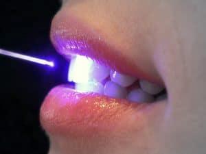 Diş Hekimliğinde Diyot Lazer Uygulamaları