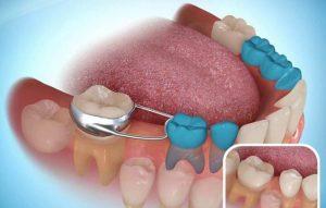 Diş Yer Tutucu