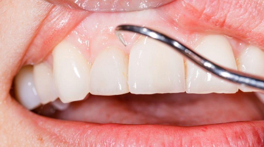 Diş Eti Tedavileri