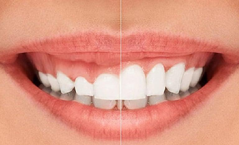 Diş Eti Estetiği